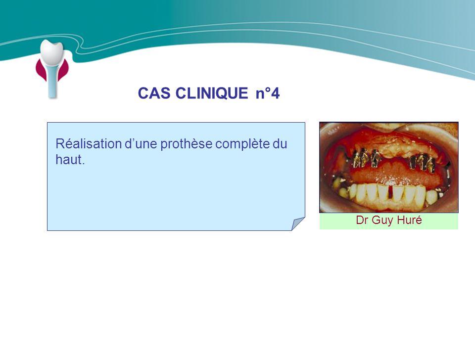 CAS CLINIQUE n°4 Dr Guy Huré Réalisation dune prothèse complète du haut.