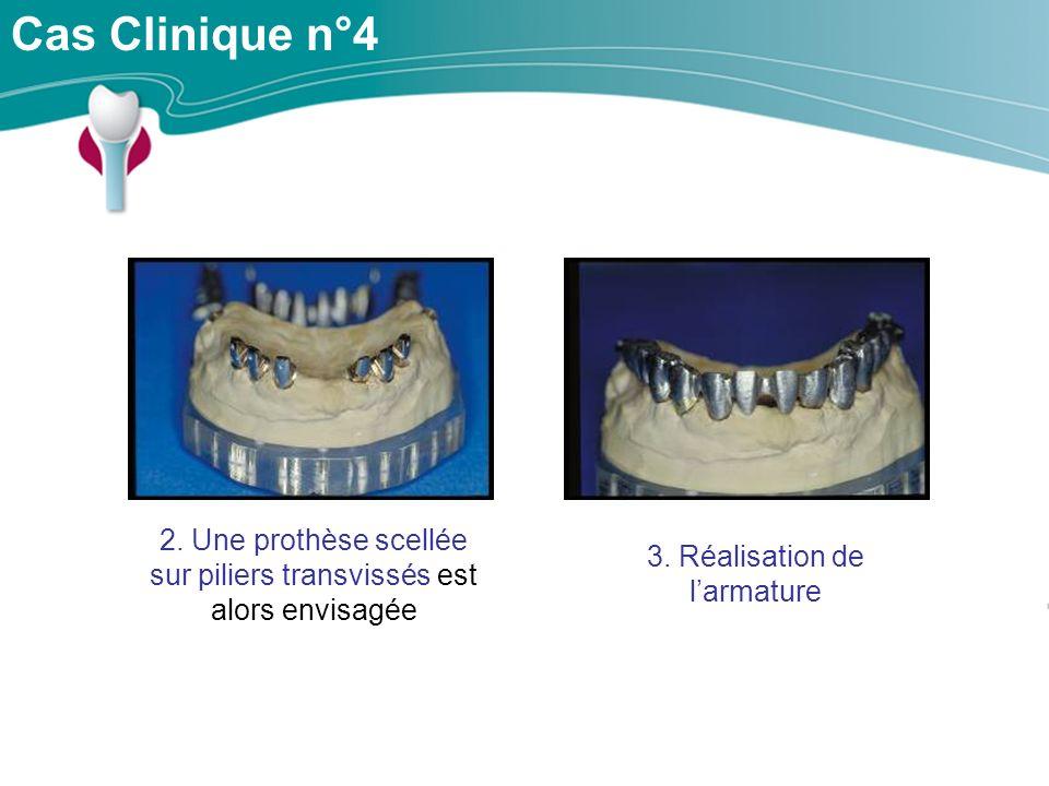 Cas Clinique n°4 2.Une prothèse scellée sur piliers transvissés est alors envisagée 3.