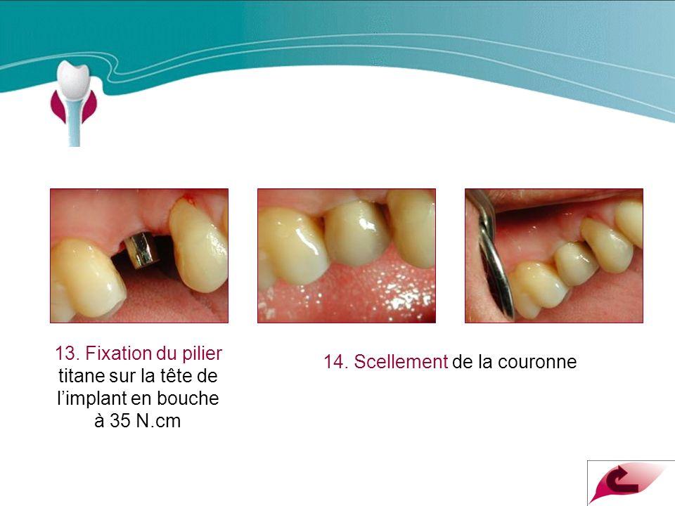 Cas Clinique n°2 13.Fixation du pilier titane sur la tête de limplant en bouche à 35 N.cm 14.