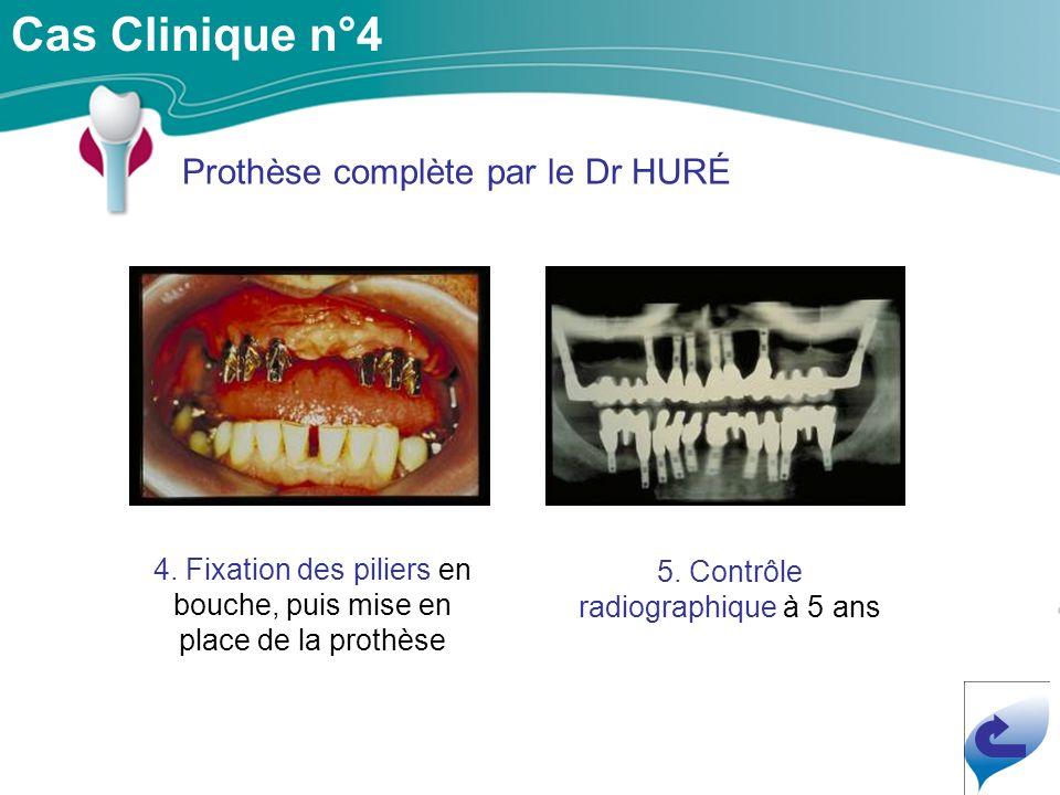 Cas Clinique n°4 Prothèse complète par le Dr HURÉ 4.
