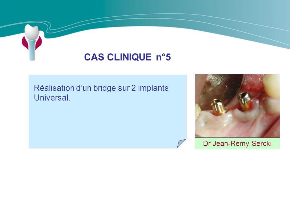 CAS CLINIQUE n°5 Dr Jean-Remy Sercki Réalisation dun bridge sur 2 implants Universal.