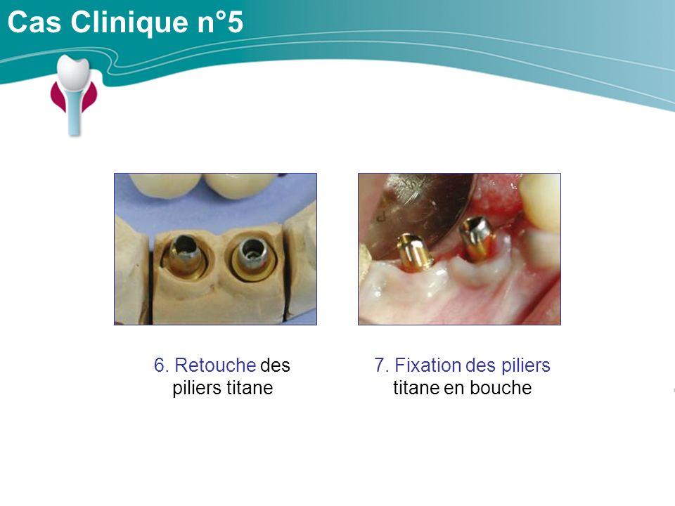 Cas Clinique n°5 6. Retouche des piliers titane 7. Fixation des piliers titane en bouche