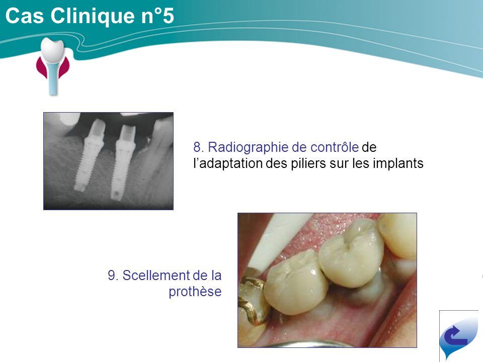 Cas Clinique n°5 8.Radiographie de contrôle de ladaptation des piliers sur les implants 9.