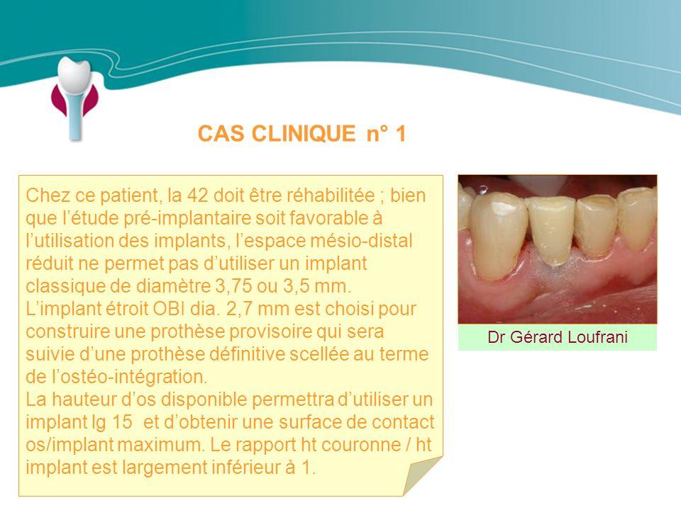 CAS CLINIQUE n° 1 Dr Gérard Loufrani Chez ce patient, la 42 doit être réhabilitée ; bien que létude pré-implantaire soit favorable à lutilisation des implants, lespace mésio-distal réduit ne permet pas dutiliser un implant classique de diamètre 3,75 ou 3,5 mm.