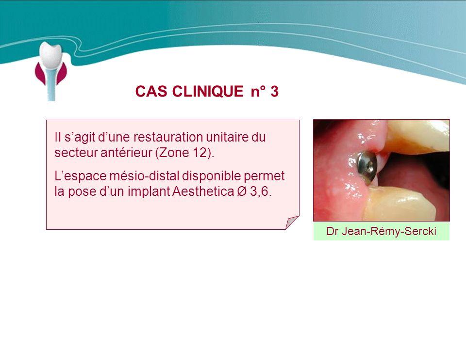CAS CLINIQUE n° 3 Dr Jean-Rémy-Sercki Il sagit dune restauration unitaire du secteur antérieur (Zone 12).