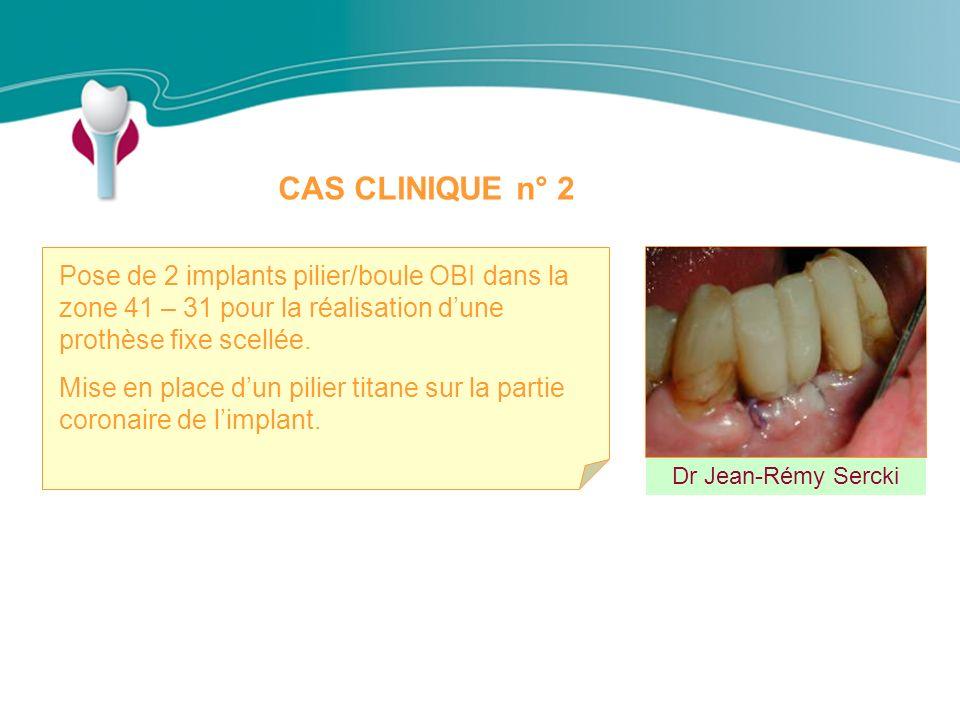 CAS CLINIQUE n° 2 Dr Jean-Rémy Sercki Pose de 2 implants pilier/boule OBI dans la zone 41 – 31 pour la réalisation dune prothèse fixe scellée.