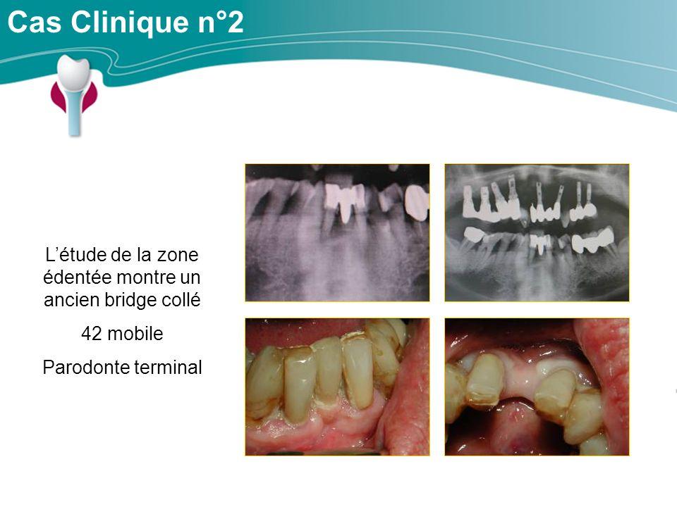 Cas Clinique n°2 Létude de la zone édentée montre un ancien bridge collé 42 mobile Parodonte terminal