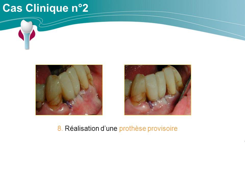 Cas Clinique n°2 8. Réalisation dune prothèse provisoire