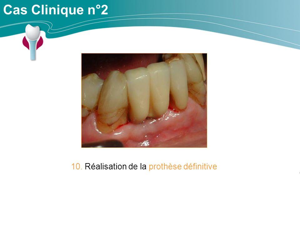 Cas Clinique n°2 10. Réalisation de la prothèse définitive