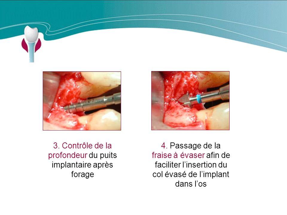 Cas Clinique n°3 3.Contrôle de la profondeur du puits implantaire après forage 4.
