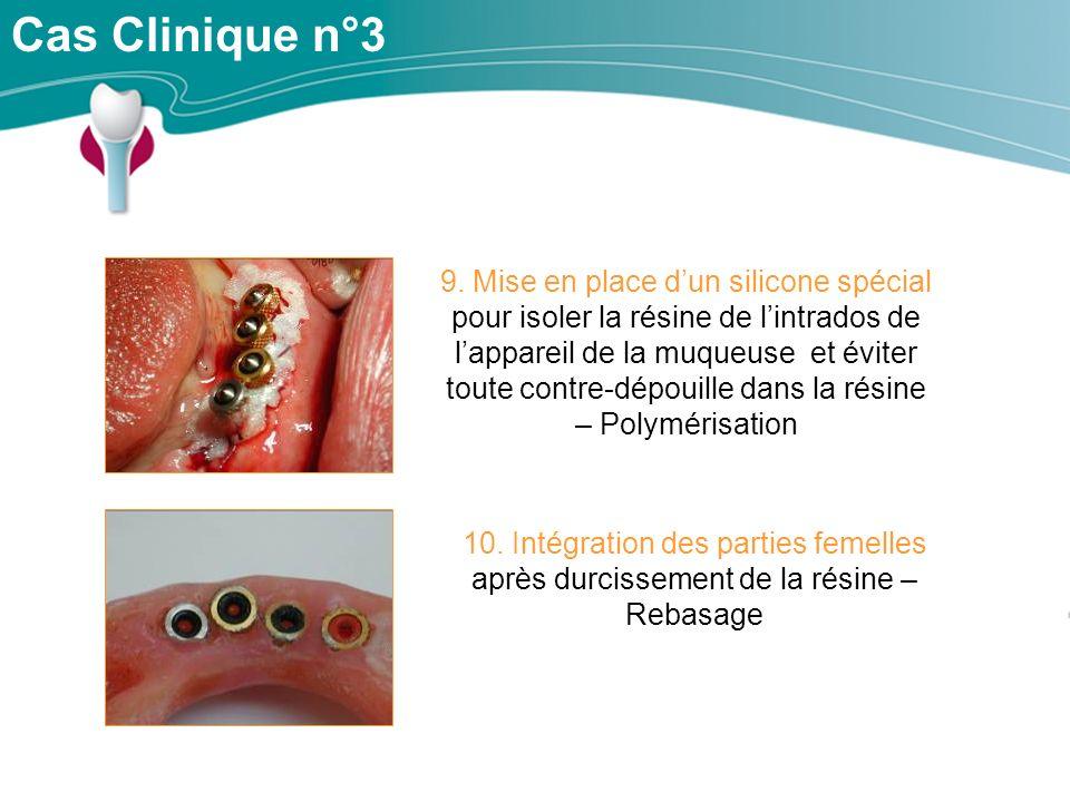 Cas Clinique n°3 10.Intégration des parties femelles après durcissement de la résine – Rebasage 9.