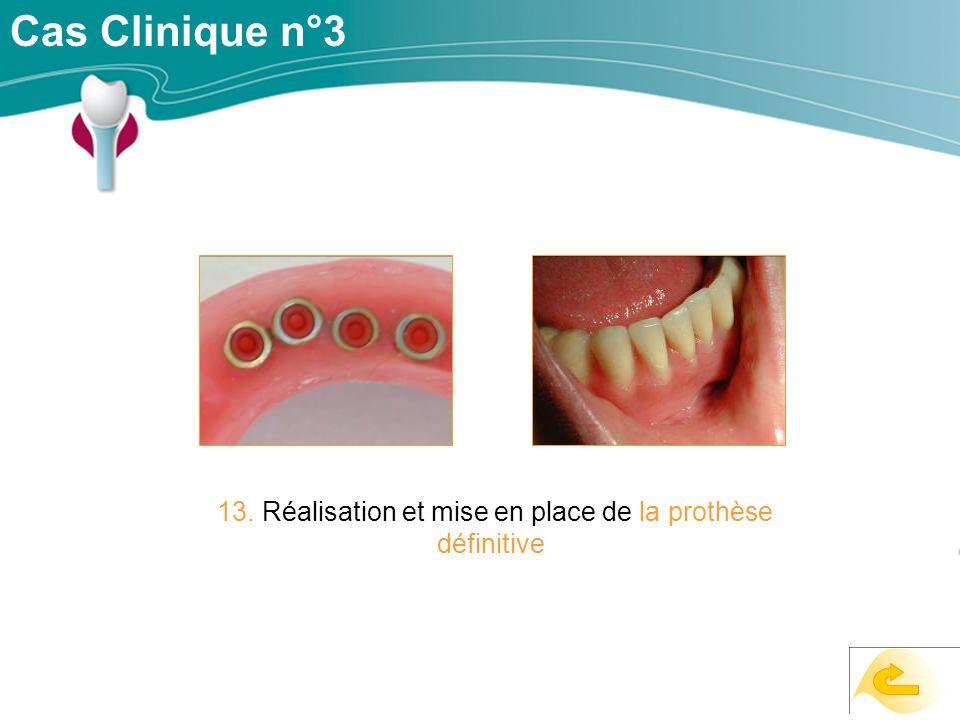 Cas Clinique n°3 13. Réalisation et mise en place de la prothèse définitive