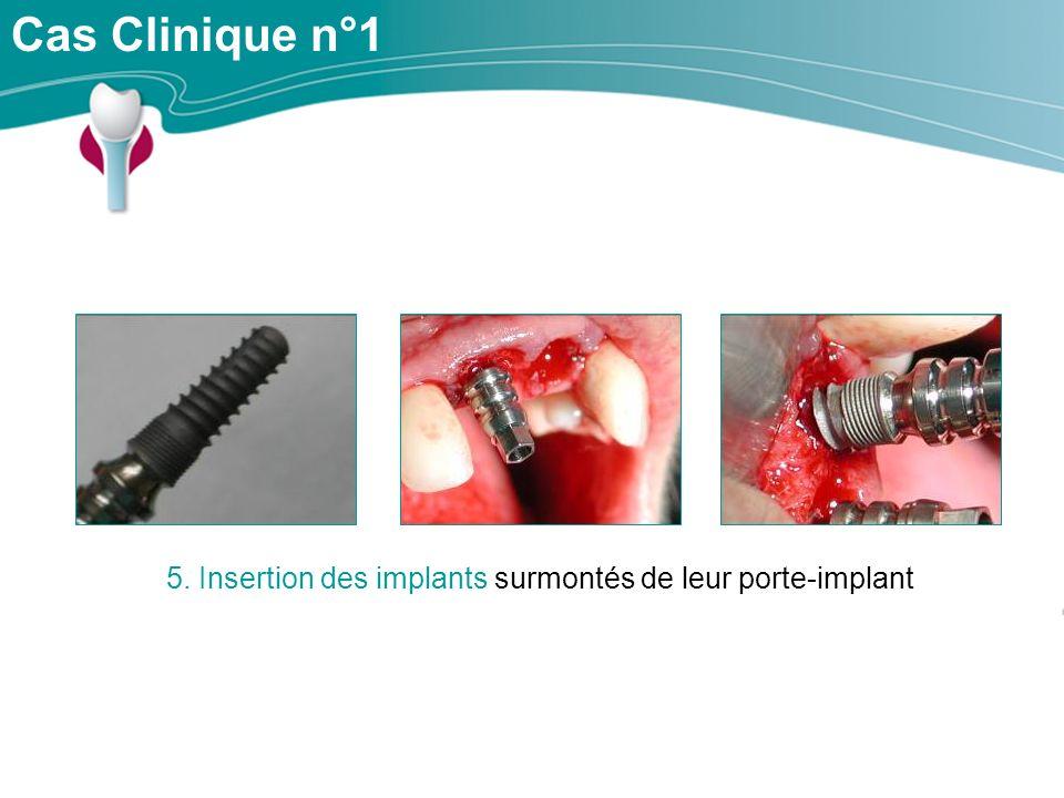 Cas Clinique n°1 5. Insertion des implants surmontés de leur porte-implant