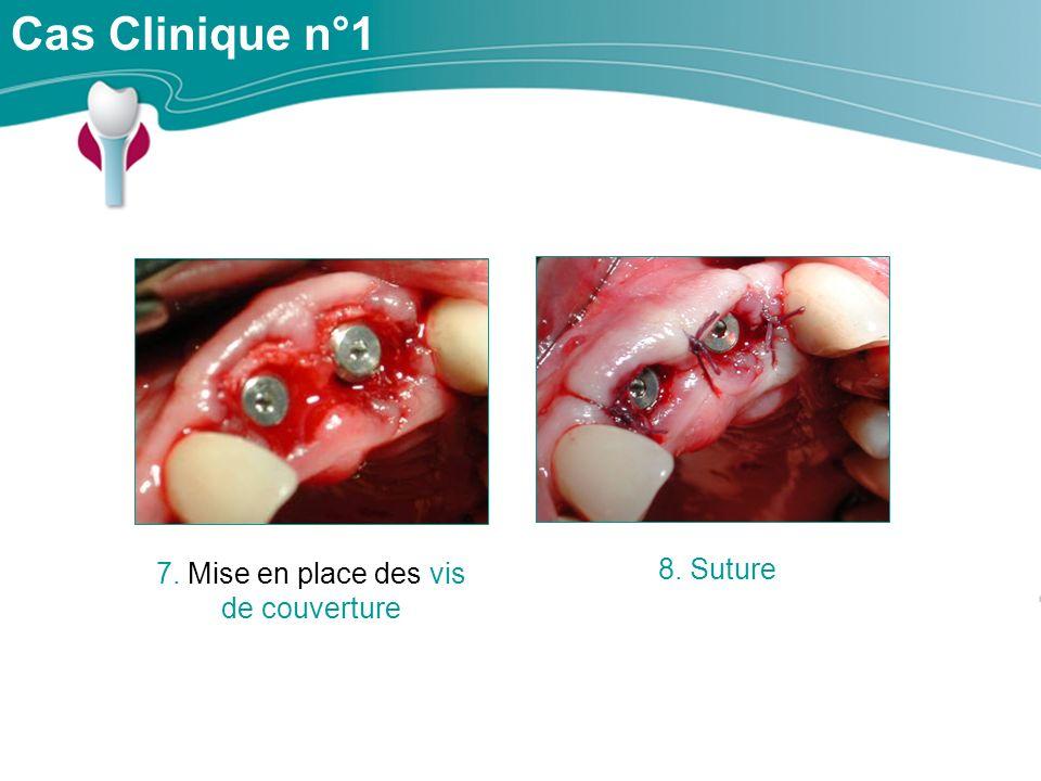 Cas Clinique n°1 7. Mise en place des vis de couverture 8. Suture