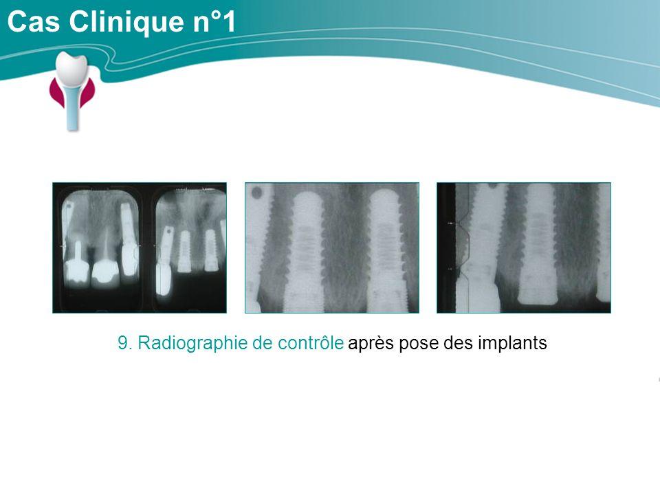 Cas Clinique n°1 9. Radiographie de contrôle après pose des implants