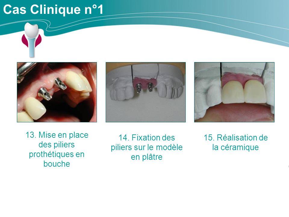 Cas Clinique n°1 13.Mise en place des piliers prothétiques en bouche 14.
