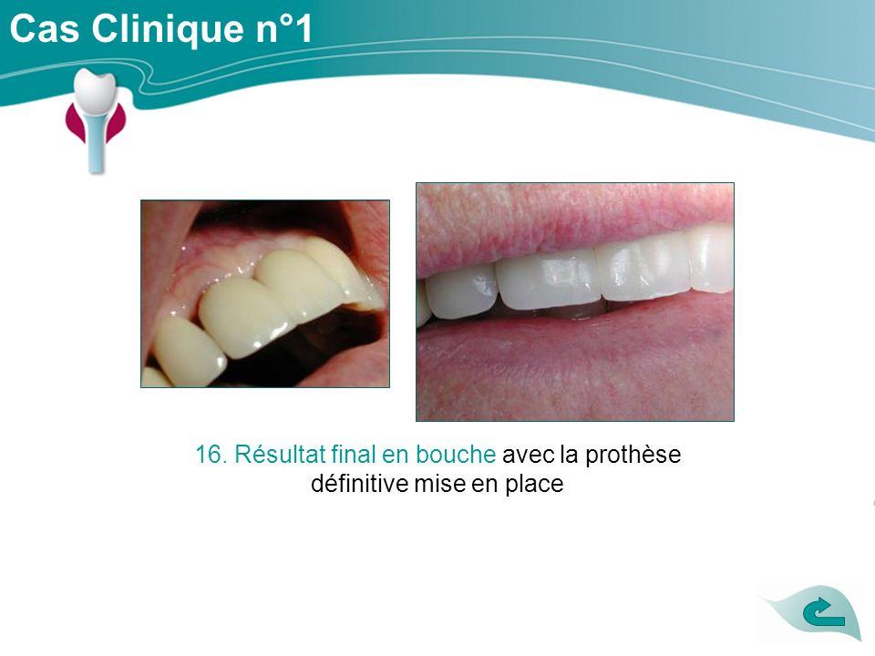 Cas Clinique n°1 16. Résultat final en bouche avec la prothèse définitive mise en place