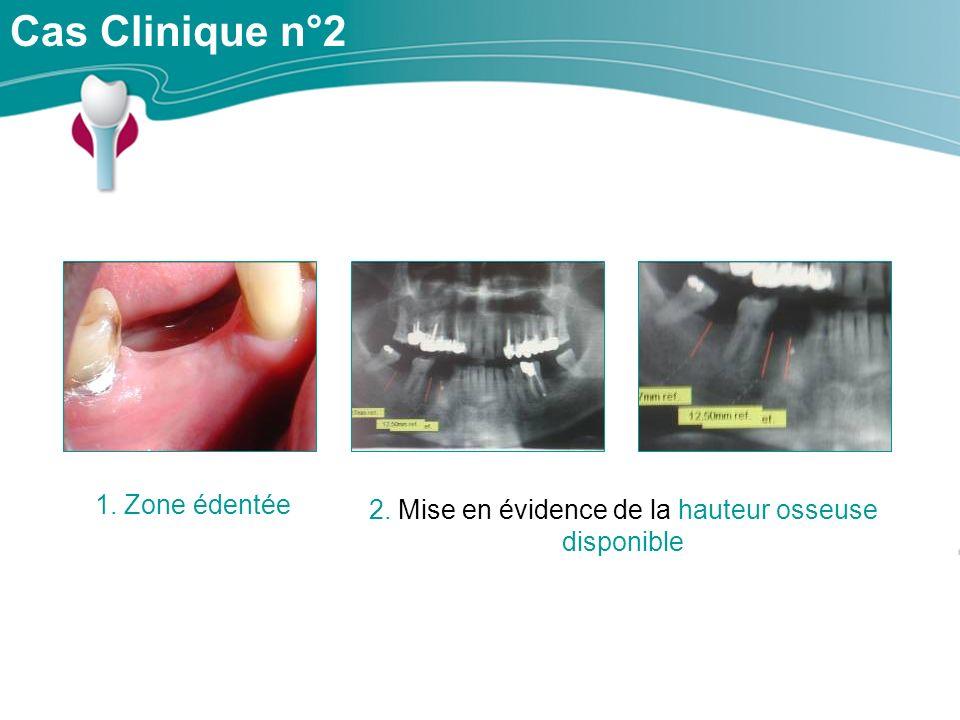 Cas Clinique n°2 1. Zone édentée 2. Mise en évidence de la hauteur osseuse disponible