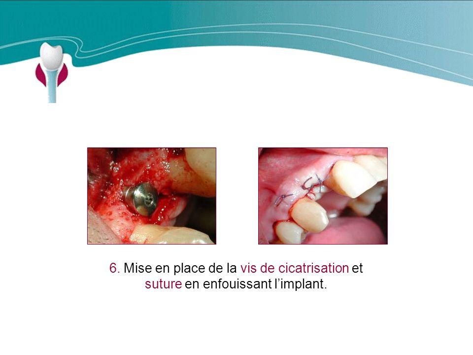 Cas Clinique n°3 6. Mise en place de la vis de cicatrisation et suture en enfouissant limplant.