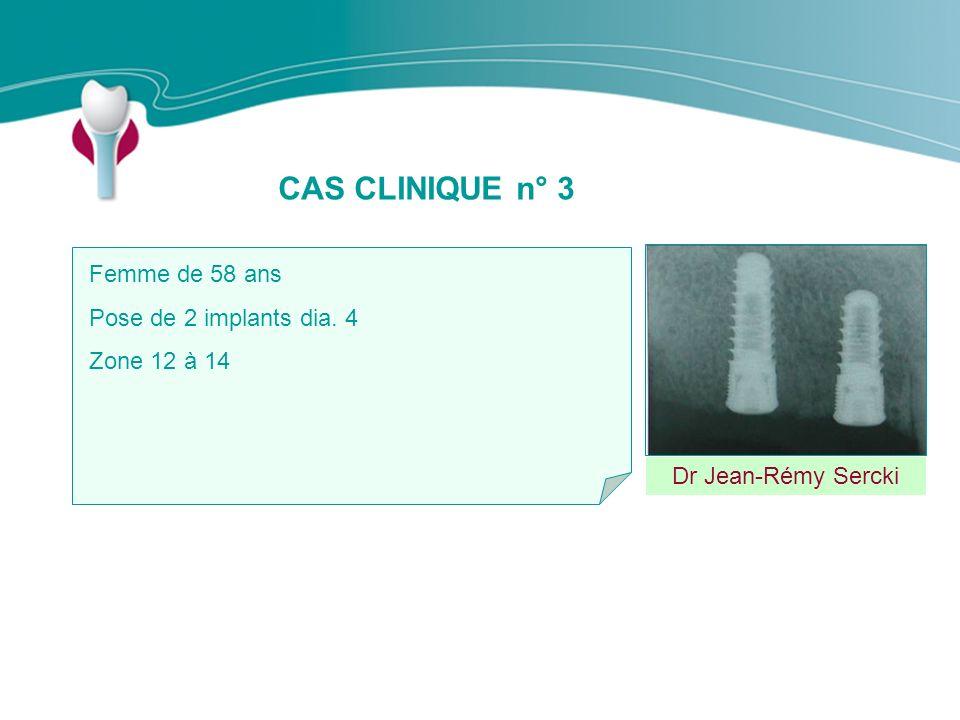 CAS CLINIQUE n° 3 Dr Jean-Rémy Sercki Femme de 58 ans Pose de 2 implants dia. 4 Zone 12 à 14