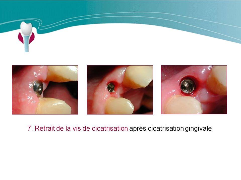 Cas Clinique n°3 7. Retrait de la vis de cicatrisation après cicatrisation gingivale