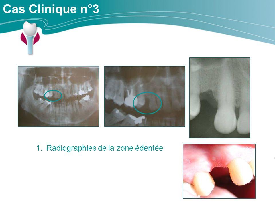 Cas Clinique n°3 1.Radiographies de la zone édentée