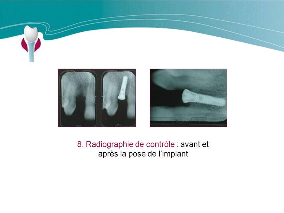 Cas Clinique n°3 8. Radiographie de contrôle : avant et après la pose de limplant