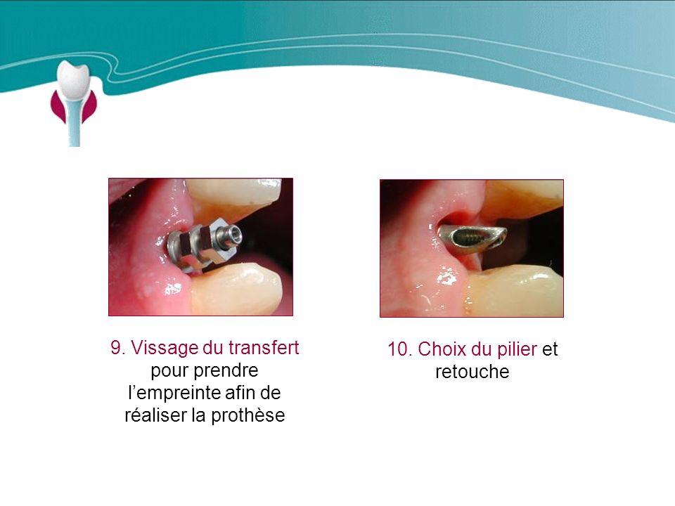Cas Clinique n°3 9.Vissage du transfert pour prendre lempreinte afin de réaliser la prothèse 10.