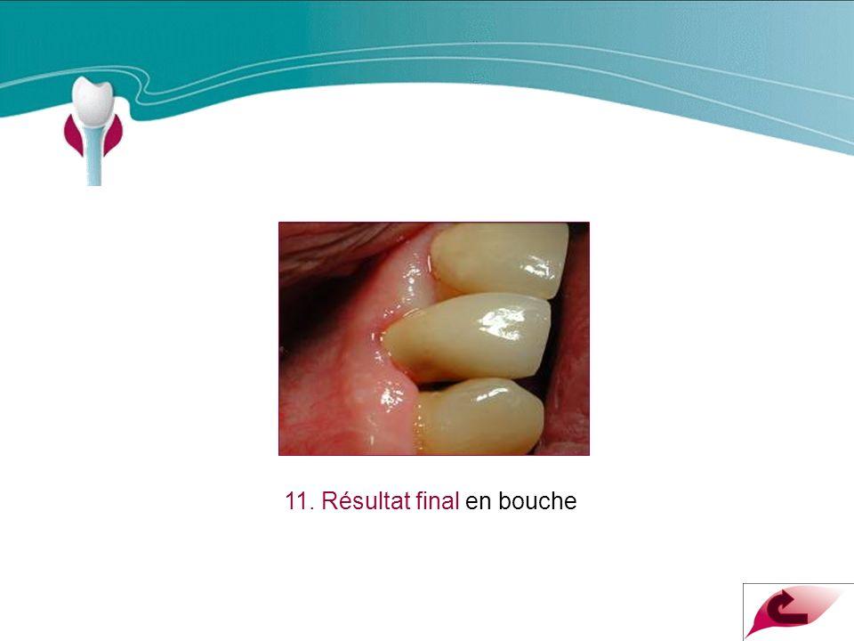 Cas Clinique n°3 11. Résultat final en bouche