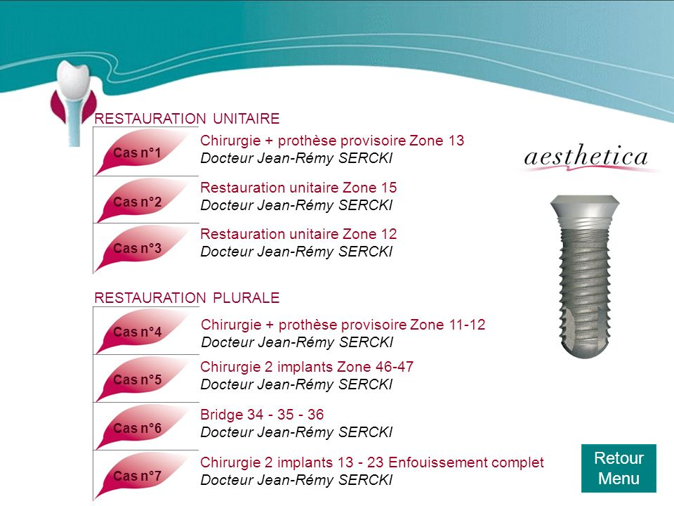 Retour Menu Cas n°8Cas n°9Cas n°10 Chirurgie 2 implants Ø 4,8 zone 45-46 Docteur Jean-Rémy SERCKI Chirurgie 3 implants Ø 4,1 zone 45-46-47 Docteur Jean-Rémy SERCKI Chirurgie 3 implants Docteur Jean-Rémy SERCKI Cas n°11 Chirurgie 2 implants Ø 4,1 zone 14-15 Docteur Jean-Rémy SERCKI Cas n°12Cas n°13 Restauration zone 14-15-16 Docteur Jean-Rémy SERCKI Réhabilitation dun édenté total du bas Docteur Marc BEAUMONT Cas n°14Cas n°15 Remplacement de 2 incisives centrales du bas Docteur Marc BEAUMONT Chirurgie 2 implants Docteur Matthieu DEUDON
