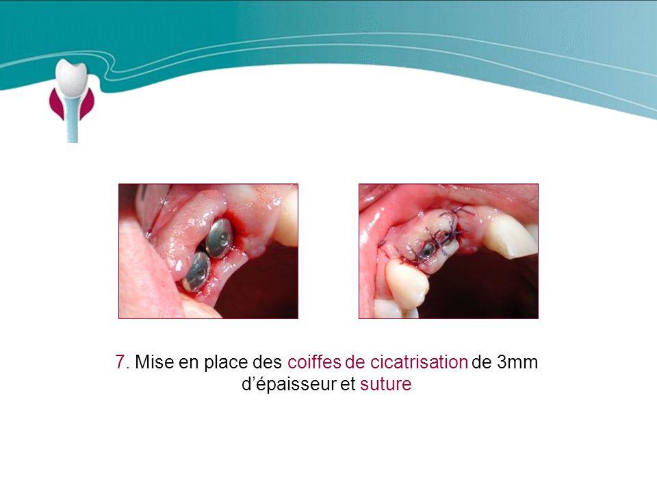 Cas Clinique n°4 7. Mise en place des coiffes de cicatrisation de 3mm dépaisseur et suture