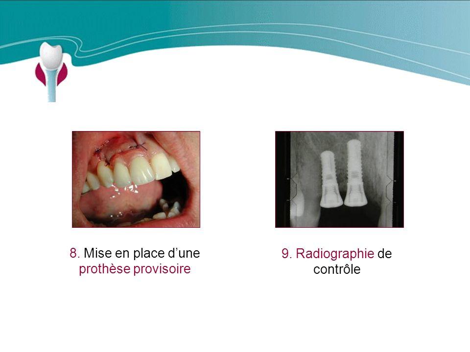 Cas Clinique n°4 8. Mise en place dune prothèse provisoire 9. Radiographie de contrôle