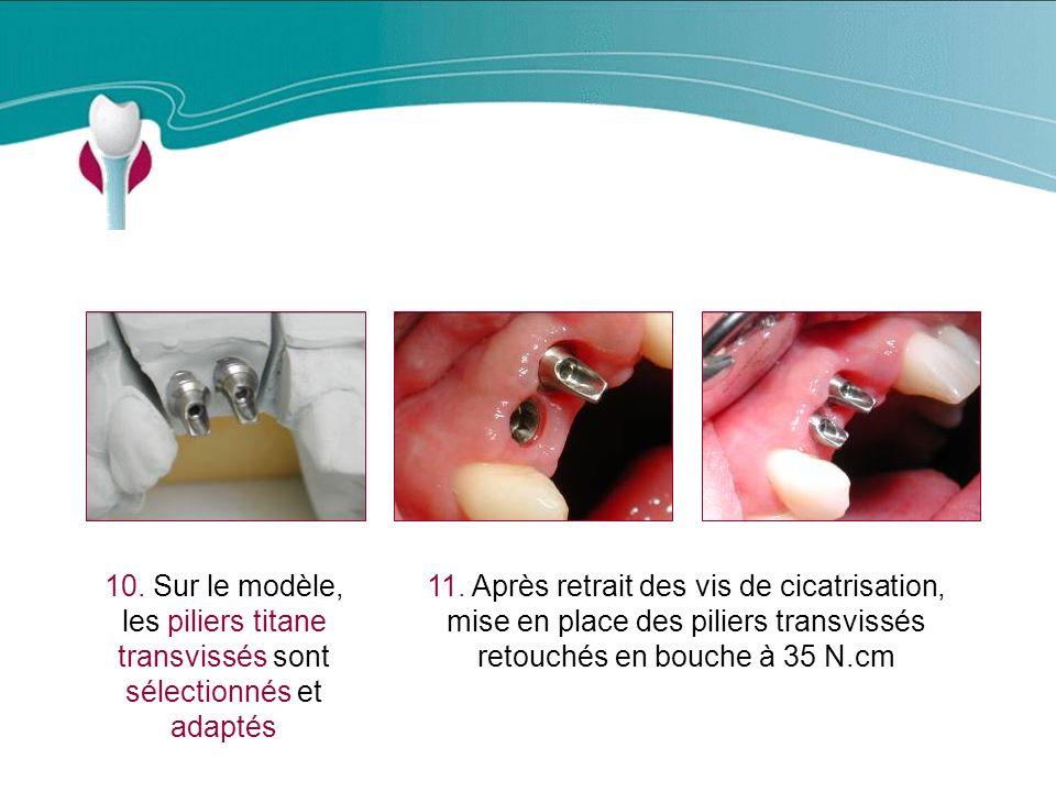 Cas Clinique n°4 11.