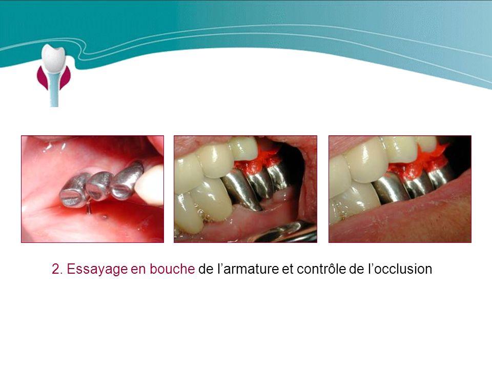 Cas Clinique n°6 2. Essayage en bouche de larmature et contrôle de locclusion
