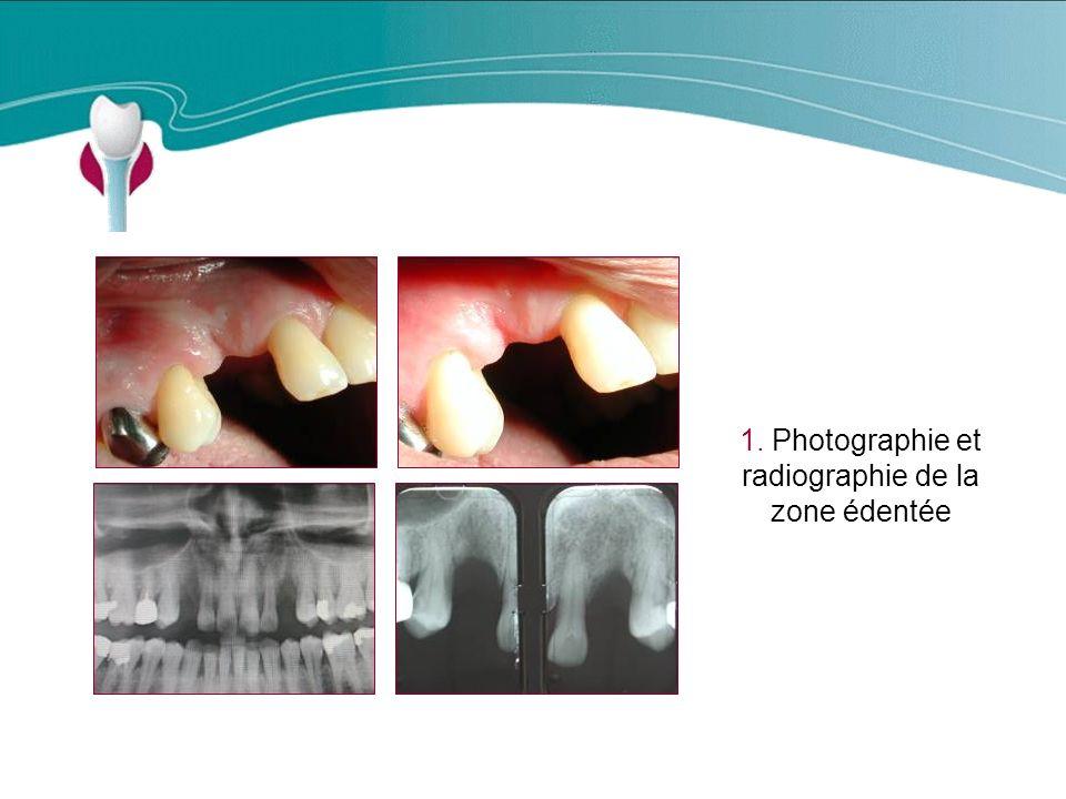 Cas Clinique n°7 1. Photographie et radiographie de la zone édentée