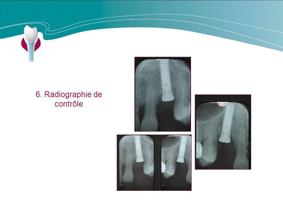 Cas Clinique n°7 6. Radiographie de contrôle