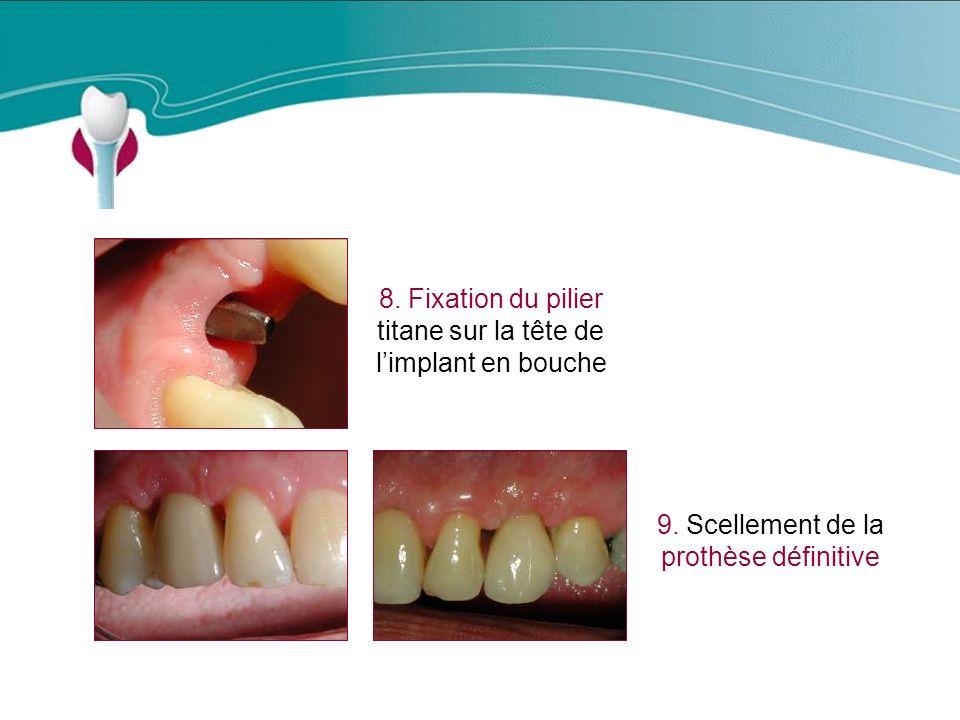 Cas Clinique n°7 8.Fixation du pilier titane sur la tête de limplant en bouche 9.