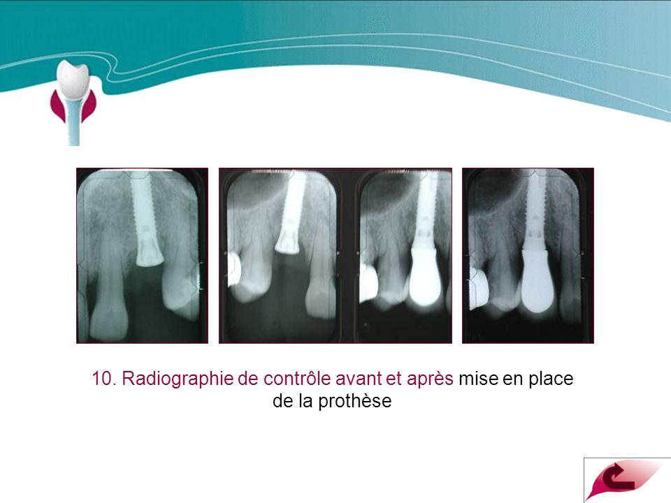 Cas Clinique n°7 10. Radiographie de contrôle avant et après mise en place de la prothèse
