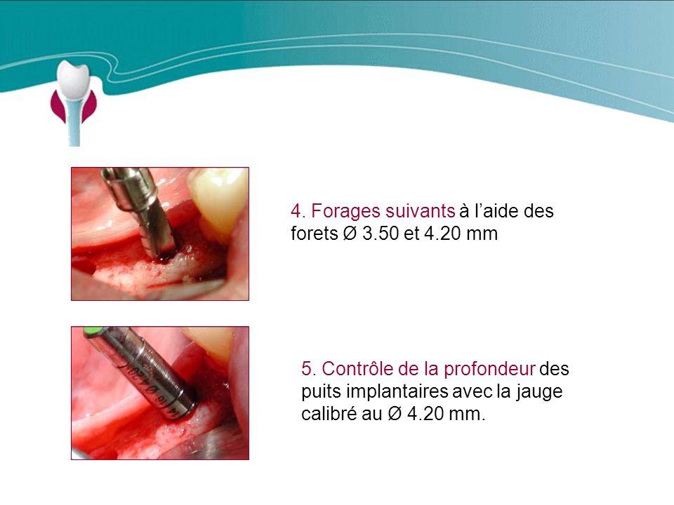 Cas Clinique n°8 4.Forages suivants à laide des forets Ø 3.50 et 4.20 mm 5.
