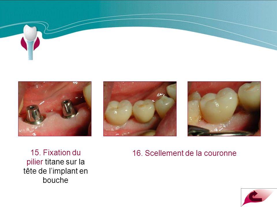 Cas Clinique n°8 15.Fixation du pilier titane sur la tête de limplant en bouche 16.