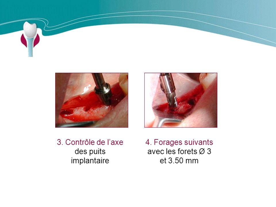 Cas Clinique n°9 3.Contrôle de laxe des puits implantaire 4.