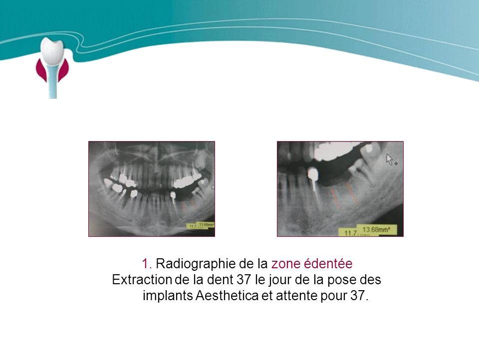 Cas Clinique n°10 1.