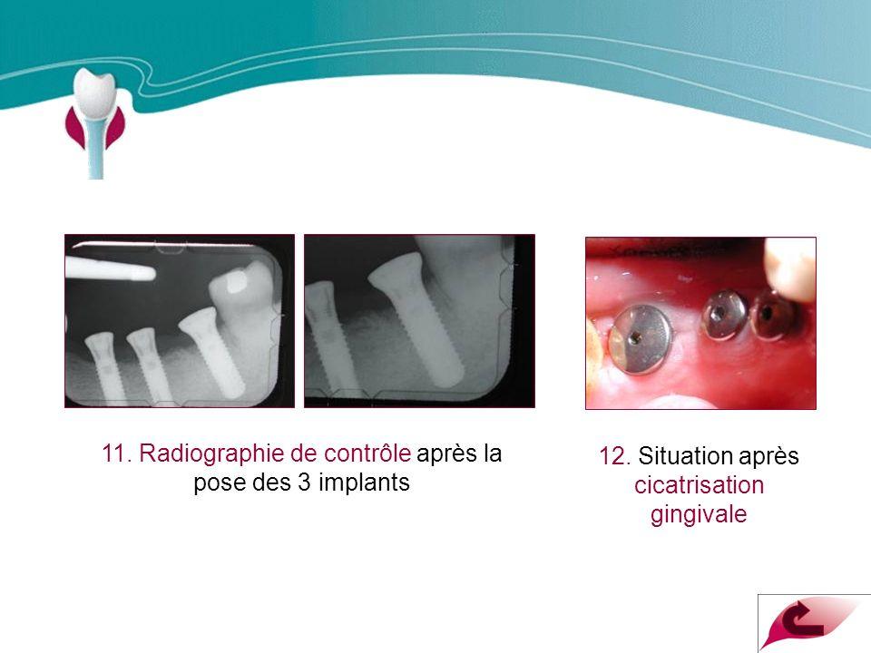 Cas Clinique n°10 11.Radiographie de contrôle après la pose des 3 implants 12.