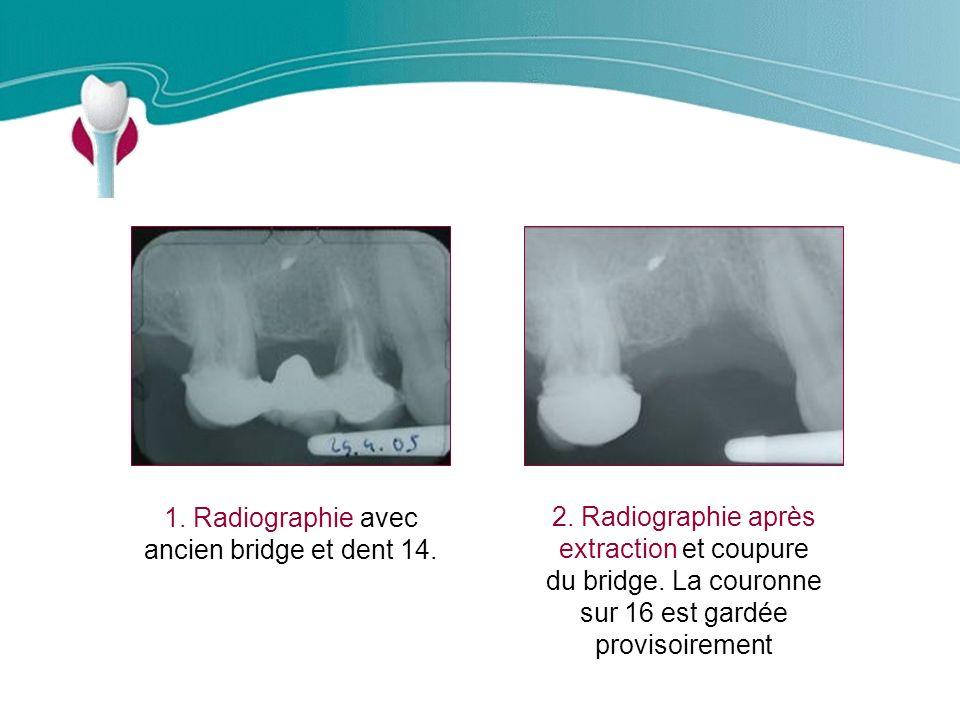 Cas Clinique n°11 1.Radiographie avec ancien bridge et dent 14.