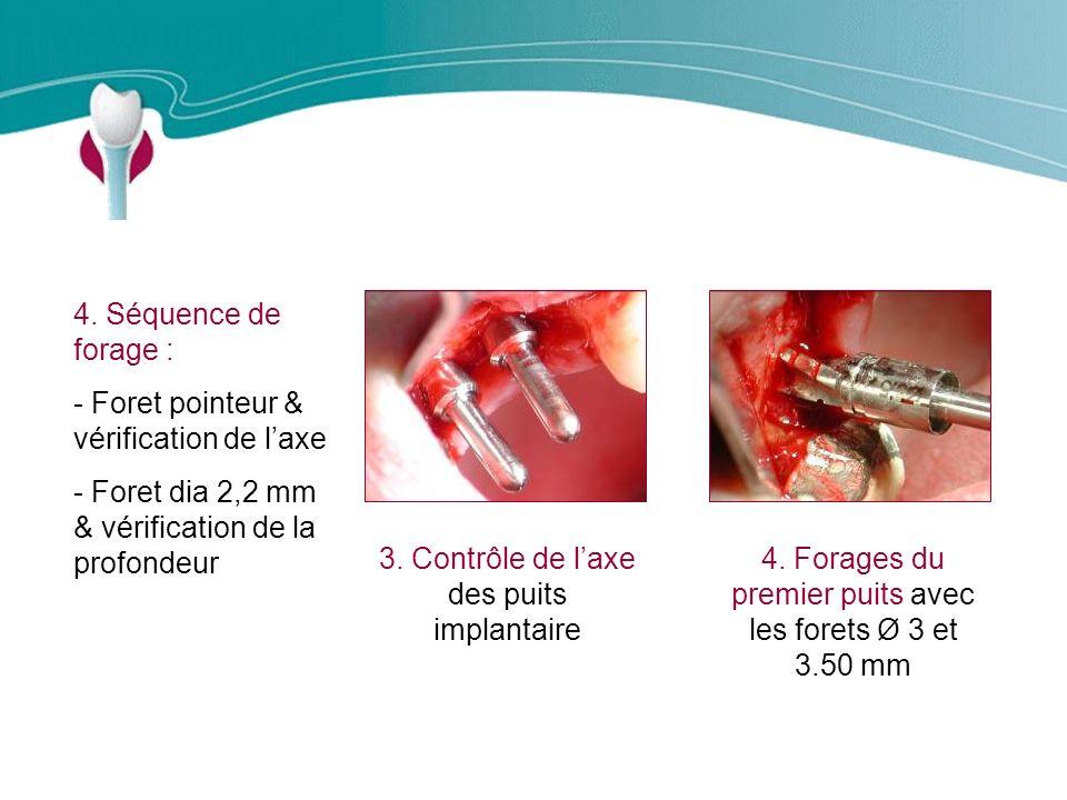 Cas Clinique n°11 4.