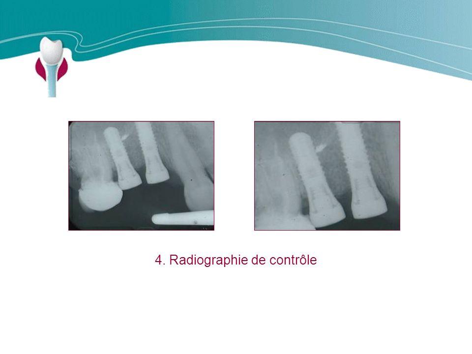 Cas Clinique n°11 4. Radiographie de contrôle
