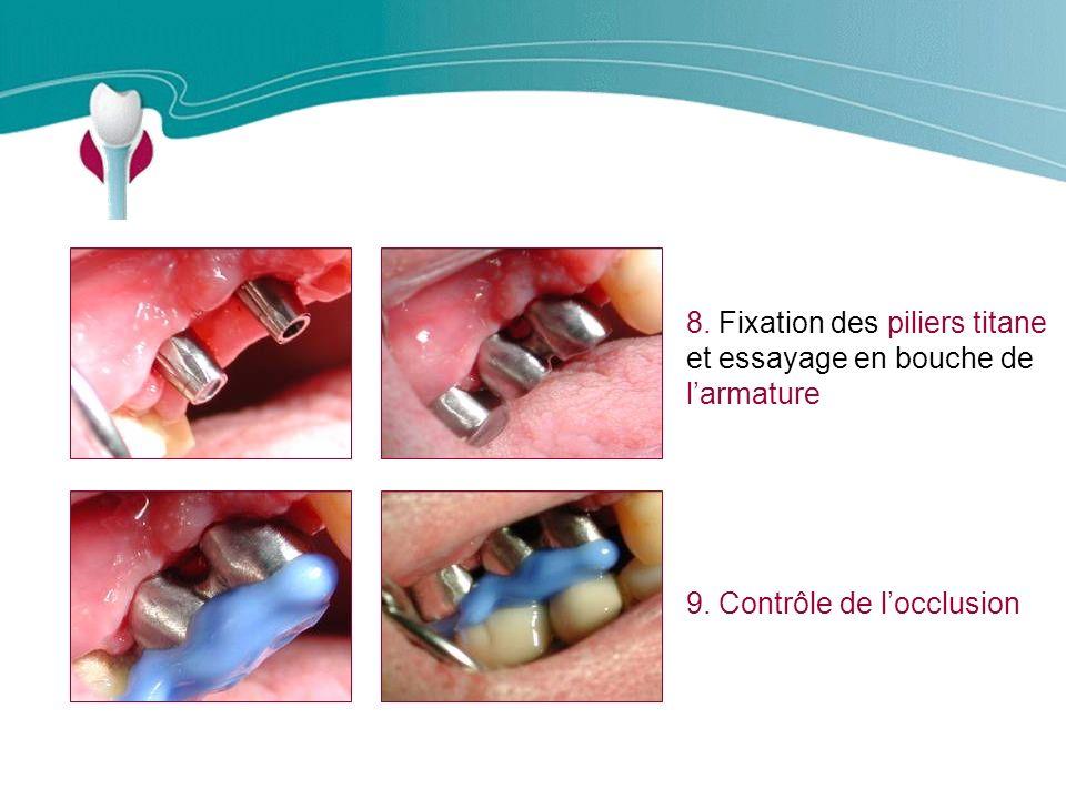 Cas Clinique n°11 8.Fixation des piliers titane et essayage en bouche de larmature 9.
