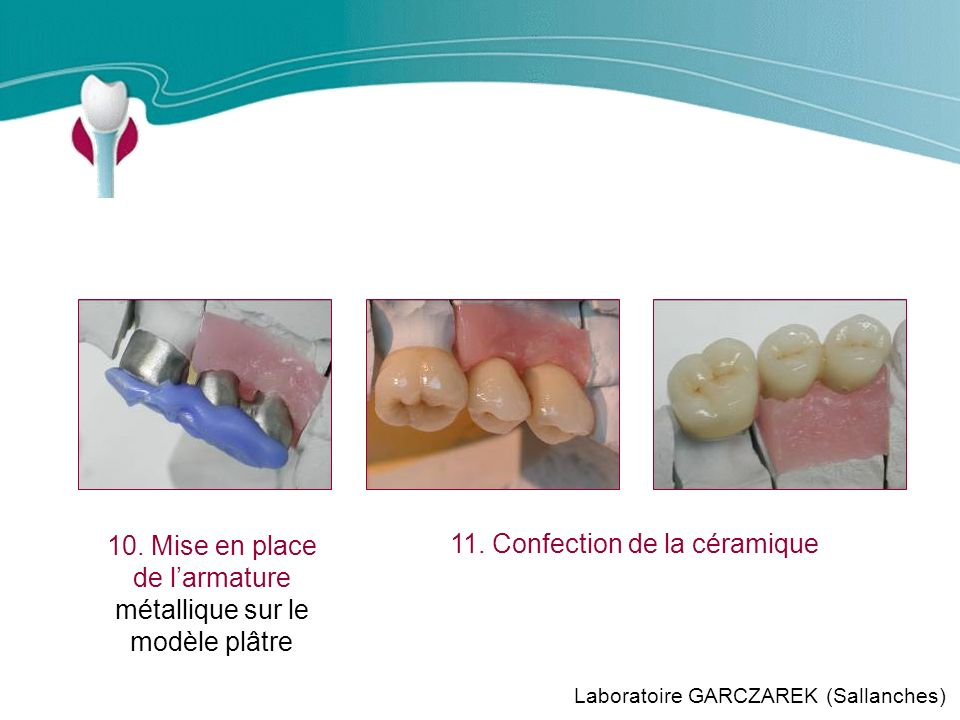 Cas Clinique n°11 Laboratoire GARCZAREK (Sallanches) 11.