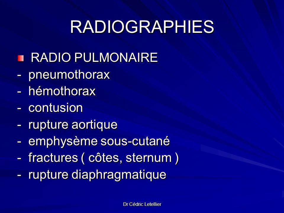 Dr Cédric Letellier RADIOGRAPHIES RADIO PULMONAIRE RADIO PULMONAIRE- pneumothorax- hémothorax- contusion - rupture aortique - emphysème sous-cutané -