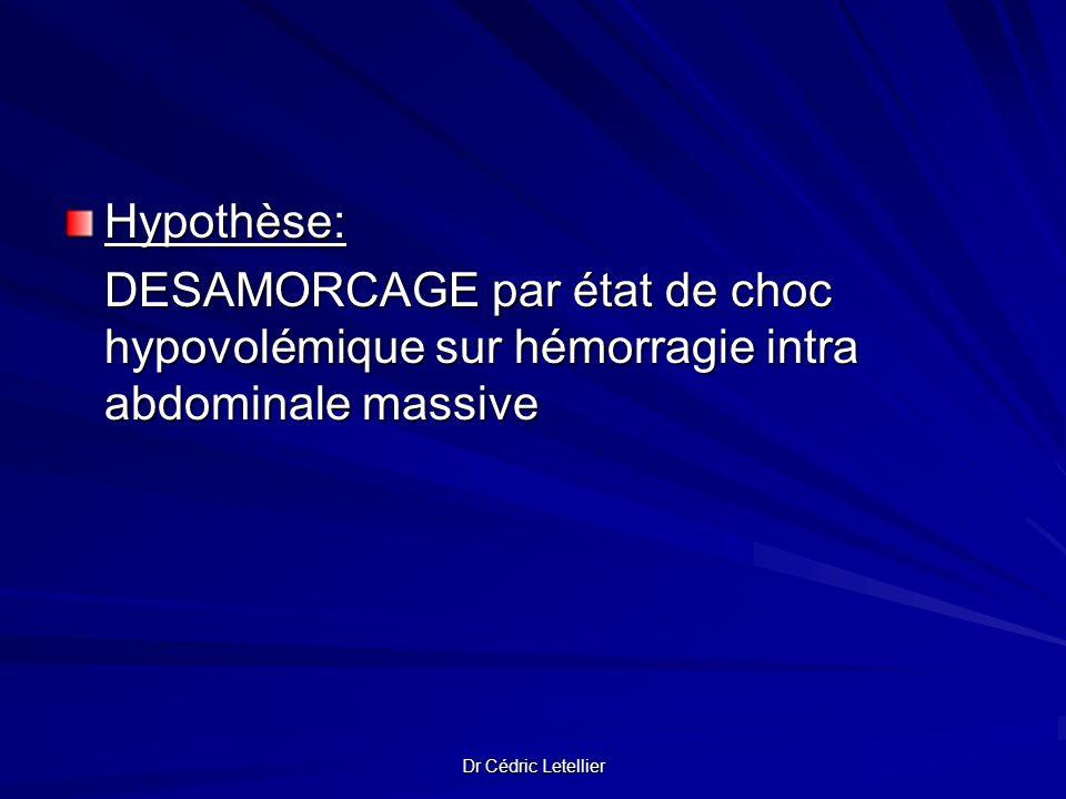 Dr Cédric Letellier Hypothèse: DESAMORCAGE par état de choc hypovolémique sur hémorragie intra abdominale massive